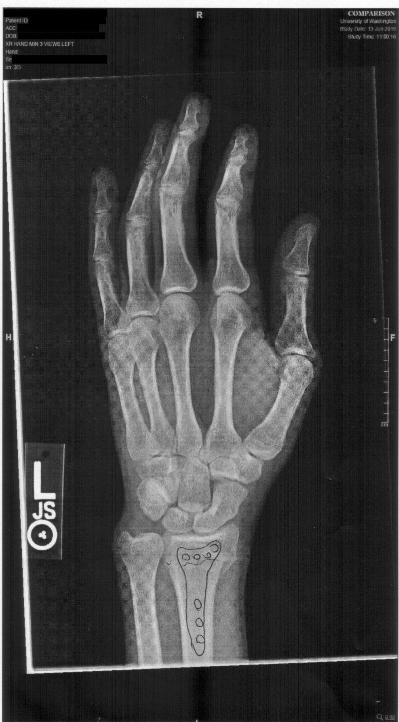 Javantea's hand x-ray